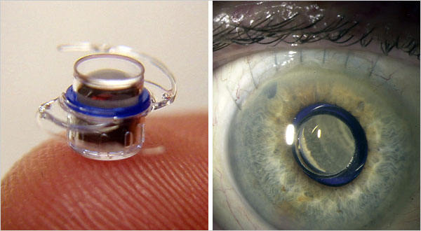 Mini Telescope for macular degeneration