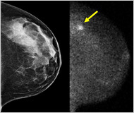 Mammograms… oops.