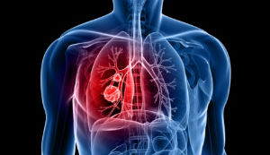 Metformin and Lung Cancer