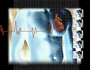 Risks of Radiation to your Heart