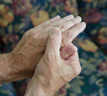 Europe rejects what FDA allows – toxic arthritis drug