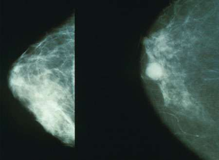 Breast cancer STEM cells