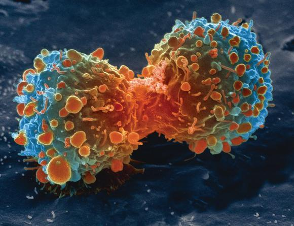 Cancer STEM cells now getting attention